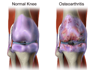 knee injury - osteoarthritis knee injury Knee Injury Treatments Knee OA