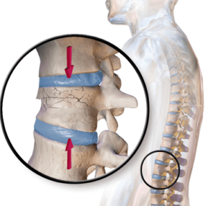 spinal injury Thoracolumbar Injuries (Mid-Lower Spine Injuries) compression fracture e1513022484546