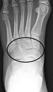 LisFranc Injury foot injury Foot Injury or Ankle Injury mid foot e1504111114445