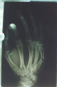 X-Ray of Boxer's Fracture wrist Wrist and Hand ouch 1554339